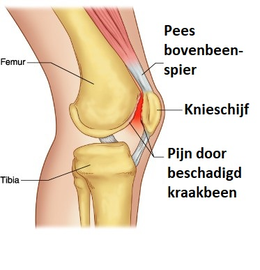 Retropattellair chondropathie Podotherapie het Gooi